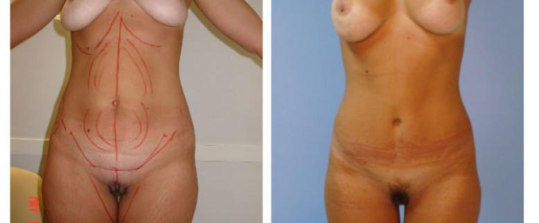 Breast lift + abdominoplasty Before and After