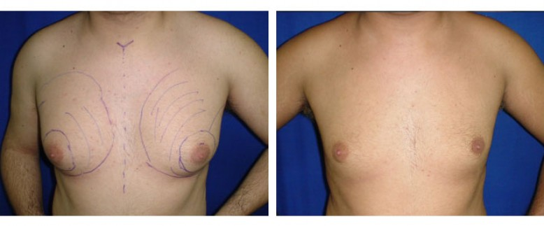 Gynecomastia liposculpture Before and After