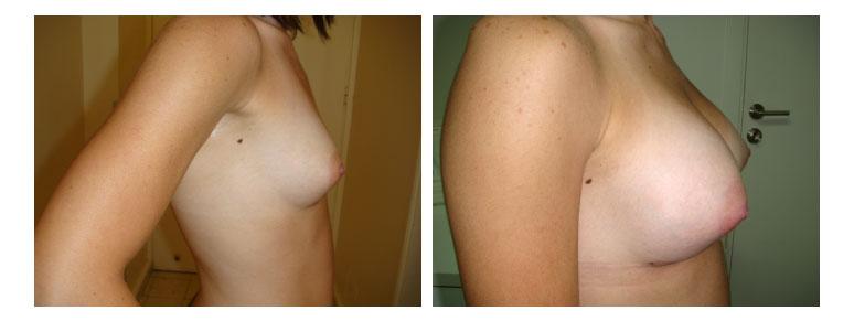 11_breast9