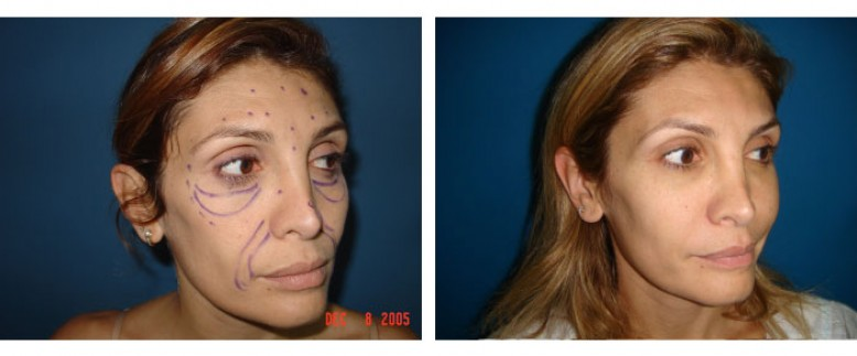face lipofilling Before and After